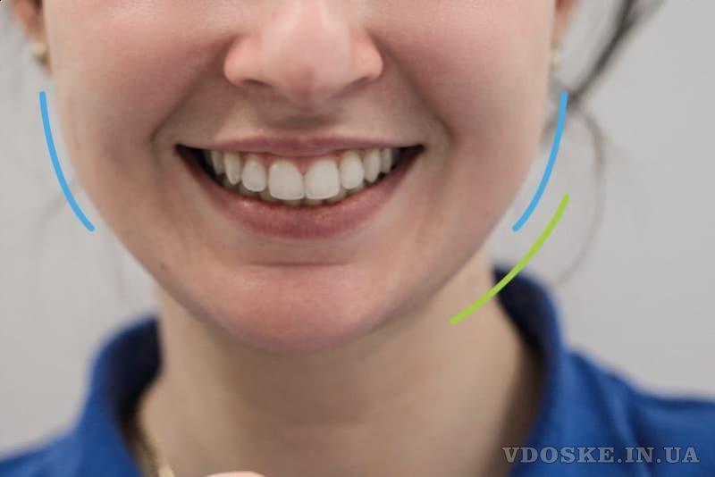 D.Ante - современная стоматология в центре Киева